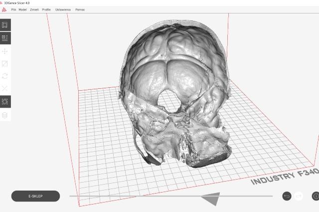 Visualisation of the skull in the software 3DGence Slicer 4.0. before 3D printing.