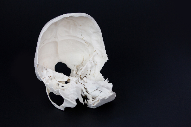 Anatomical model of the skull 3D printed with ABS material on 3DGence INDUSTRY F340 laid on the table before the surgery.